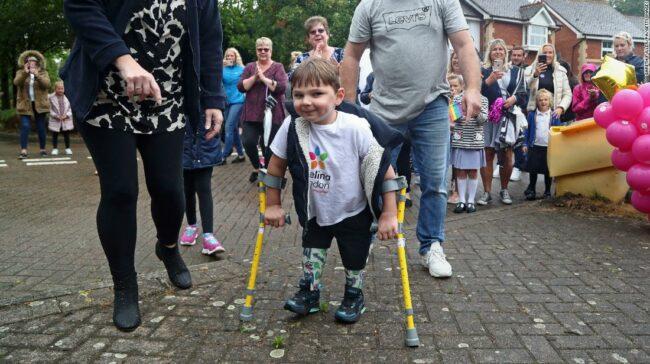Tony Hudgell, un băiat de 5 ani, cu picioare protetice, strânge 1 milion de dolari pentru NHS